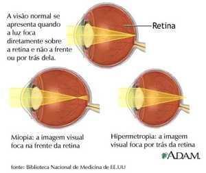d647e956e Miopia e astigmatismo são chamadas doenças refrativas, pois são causadas  por falhas na refração da