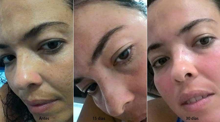 Fabuloso Meu tratamento para manchas: um mês depois | Conversa de Menina MW57